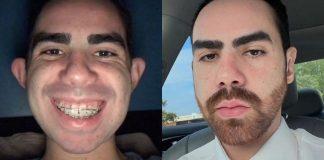 jovem-insatisfeito-com-a-aparencia-passa-por-9-cirurgias-para-mudar-o-rosto